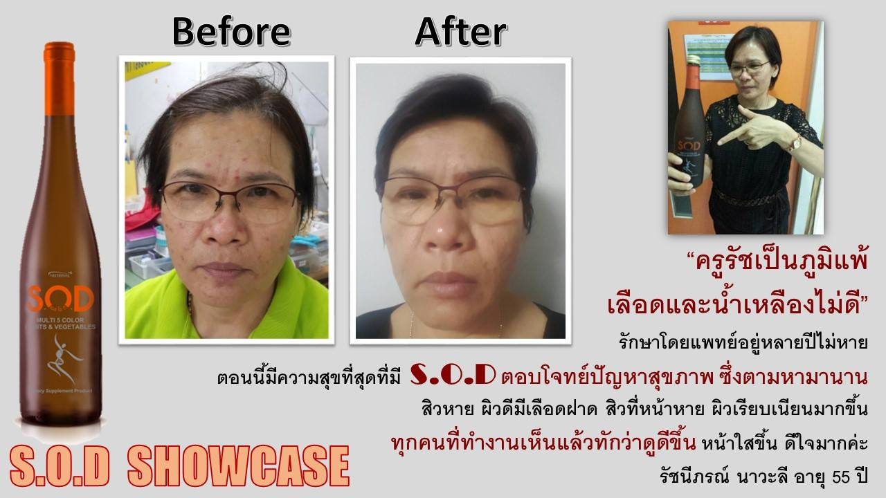 ตัวอย่างผู้ใช้สินค้า SUCCESSMORE S.O.D (10)