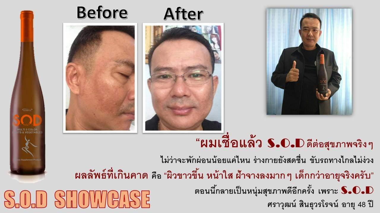 ตัวอย่างผู้ใช้สินค้า SUCCESSMORE S.O.D (13)