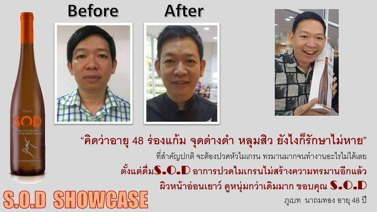 ตัวอย่างผู้ใช้สินค้า SUCCESSMORE S.O.D (16)