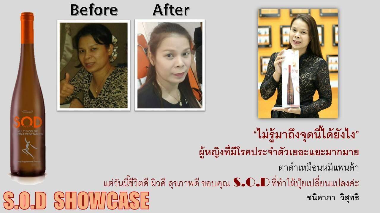 ตัวอย่างผู้ใช้สินค้า SUCCESSMORE S.O.D (21)
