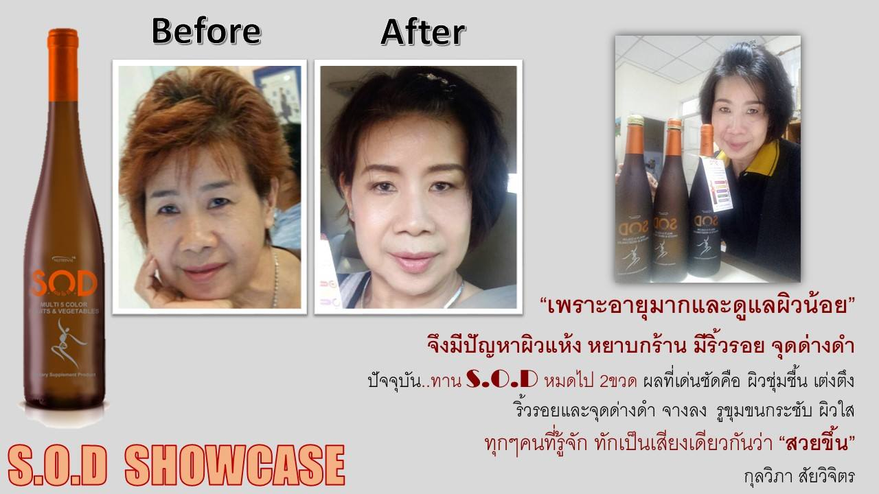 ตัวอย่างผู้ใช้สินค้า SUCCESSMORE S.O.D (24)