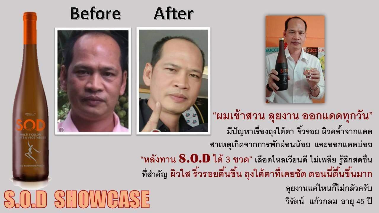 ตัวอย่างผู้ใช้สินค้า SUCCESSMORE S.O.D (5)